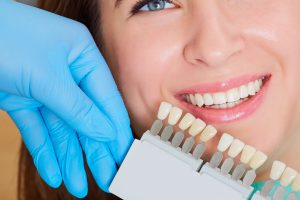 Close-up of a girl with a beautiful smile at the dentist. Dental care concept. Set of implants with various shades of tone