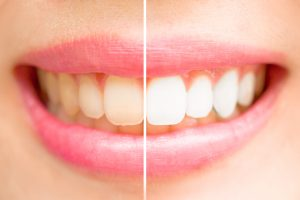 Close-up teeth female between before and after brush the teeth.