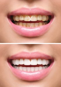 Woman teeth before and after whitening. Oral care