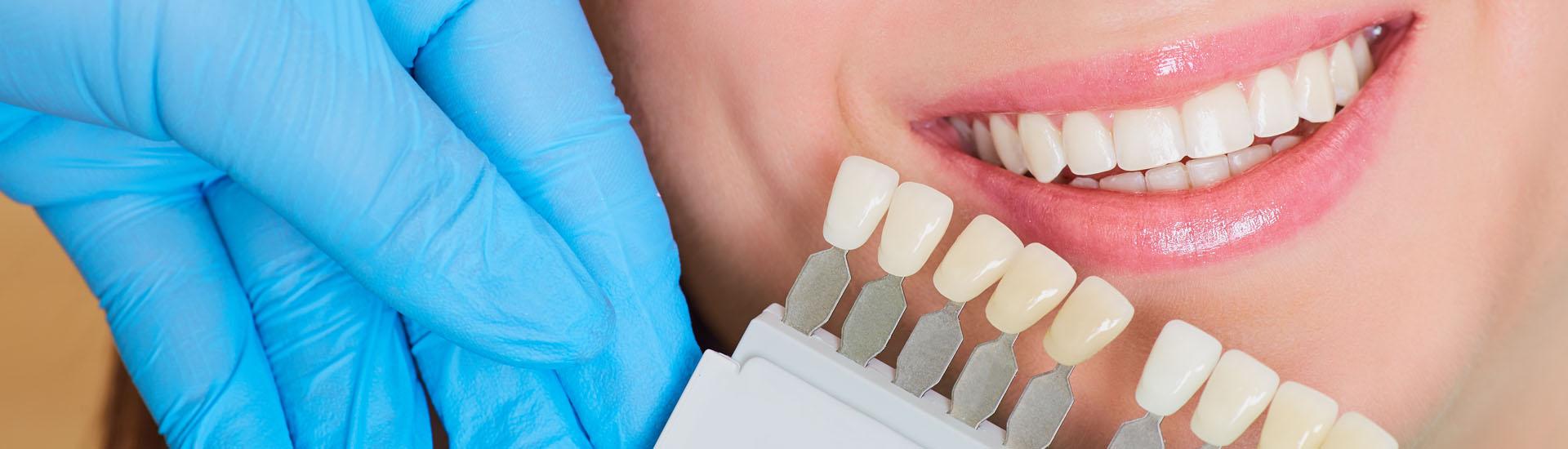Dentiris blanchiment dentaire à Lausanne