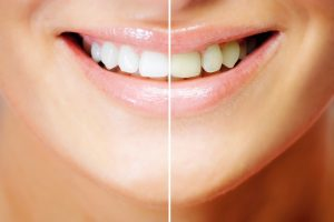 Teeth whitening , before and after comparison