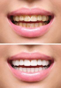 tarif blanchiment des dents
